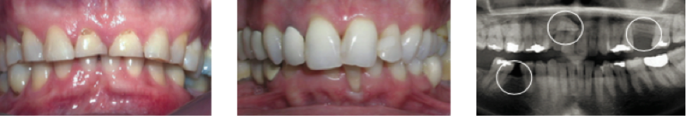 Tooth wear, periodontitis, impacts