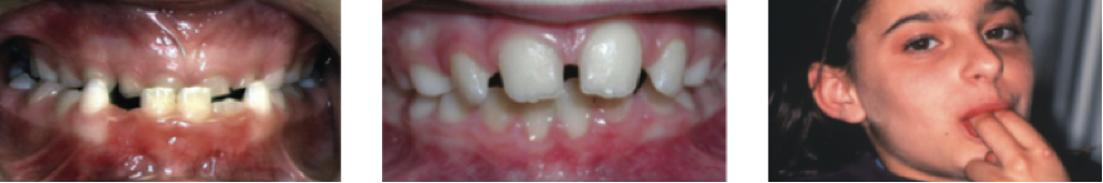 Additionally, (1) underbites and (2) spacing can be addressed with orthodontic care. And orthodontic care may prevent the long-term detrimental effects of (3) oral habits.