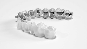 Custom lingual braces are uniquely designed for your teeth to provide comfortable rapid orthodontic treatment, all while keeping your smile front and center.