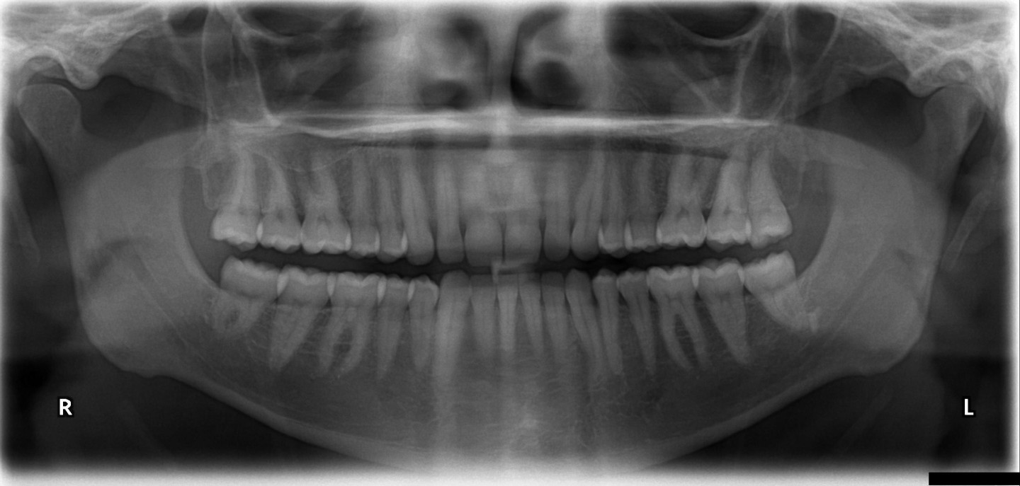 A panoramic x-ray - just one of the diagnostic tools Dr. Cooper uses to provide you top-notch custom orthodontic care.