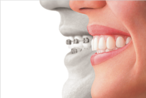 A comparison of how your smile looks with Invisalign clear retainers on vs. traditional metal braces.